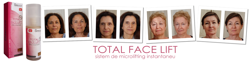 Total Face Lift